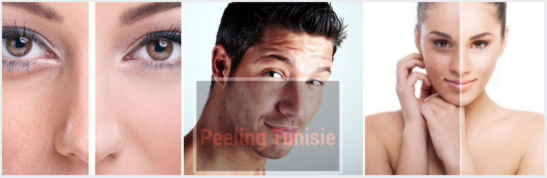 peeling tunisie