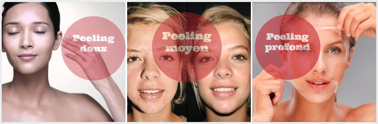 types peelings