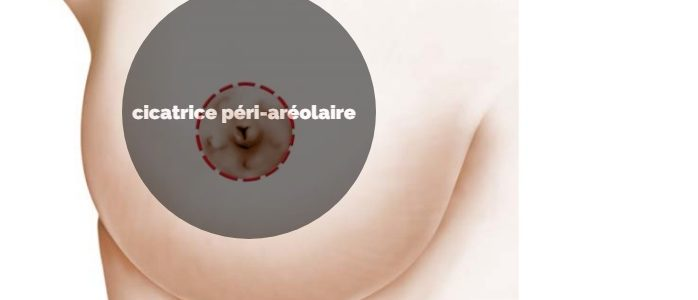 Technique de Round Block pour la correction mammaire