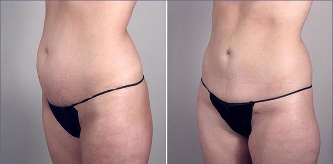 photos avant après abdominoplastie